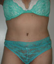 Tummy Tuck Patient 7 Before Pic 2